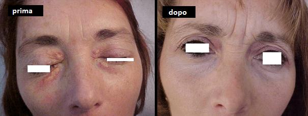 Xantelasma palpebrale – Asportazione con laser erbium