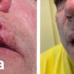 sutura plastica dopo rottura labbro
